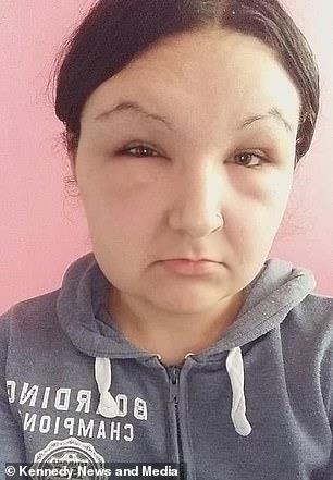 إصابة فتاة بـ«العمى»