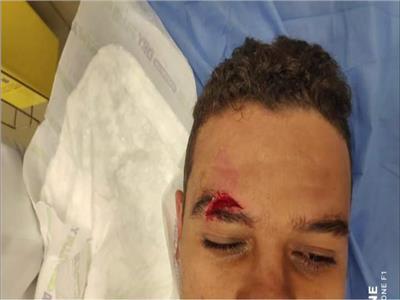 أول تعليق لسعد سمير بعد إصابته «الدموية»