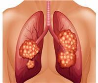 باحثون صينيون يحددون البروتينات الرئيسة المرتبطة بسرطان الرئة