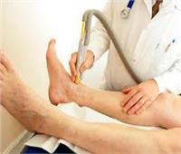 استشاري أوعية دموية: الإسراع فى علاج الدوالى قبل حدوث جلطات