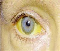 فيديو| أستاذ علاج الكبد يكشف أسباب «صفار العين»