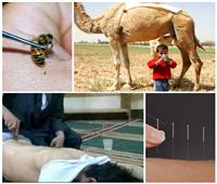 «بول الإبل وعصا الفقرات».. وهّم العلاج بـ«الخرافات» وبيزنس النصب على المرضى