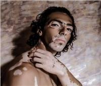 بالفيديو  بعد مرض رامي جمال.. عارض أزياء: «البهاق» لم يمنعني عن النجاح