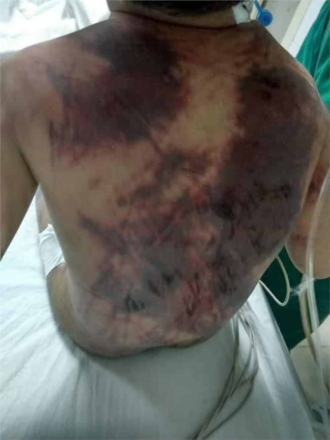 آثار التعذيب تظهر على جسم الطفل