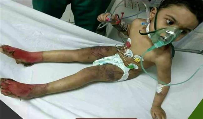 صورة للطفل قامت والدته وزوجها بتعذيبه
