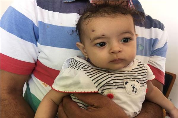 الطفلة بعد اجراء العملية