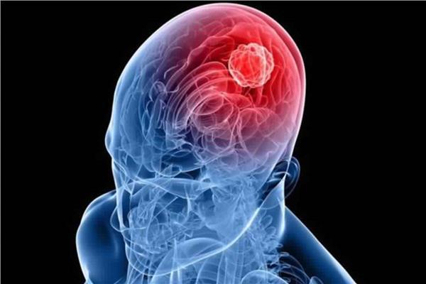 طبيب مخ وأعصاب يوضح أحدث التقنيات فى عالم جراحات الأعصاب