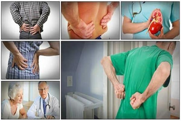 دراسة أمريكية: دواء جديد يعمل على إصلاح الكلى التالفة