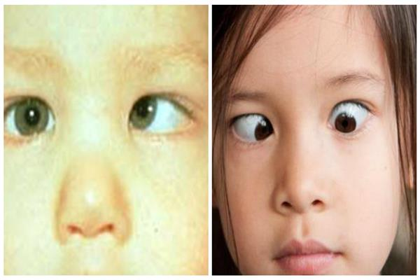 «حَوَل العينين» - صورة مجمعة