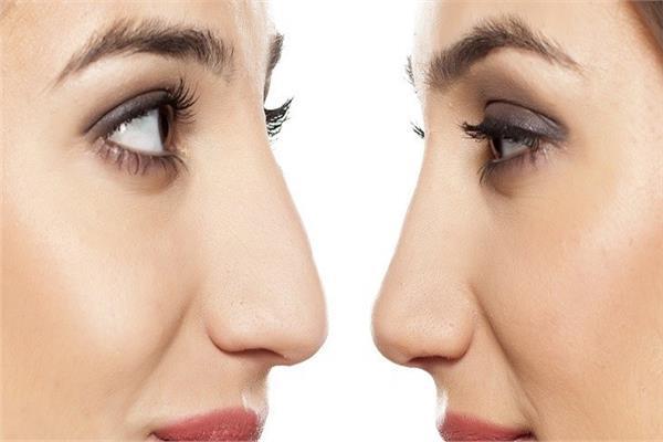 مشاكل الأنف التجميلية وكيفية التخلص منها