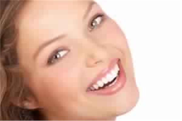 """كيفية الوصول الى تقنية الـ """"هوليود سمايل"""" فى الاسنان"""
