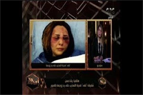 """""""تقى""""، ضحية التعذيب على يد زوجها"""