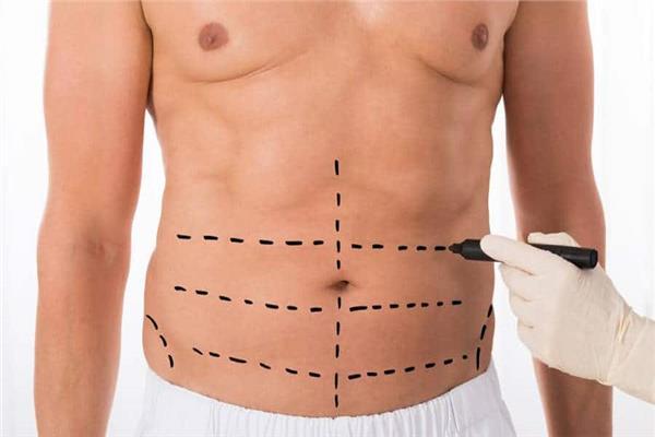 جراح: عمليات نحت الجسم هي الأكثر شيوعاً بين الرجال