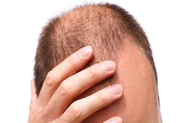 زراعة الشعر لم تعد تعالج مشاكل فروة الرأس فقط