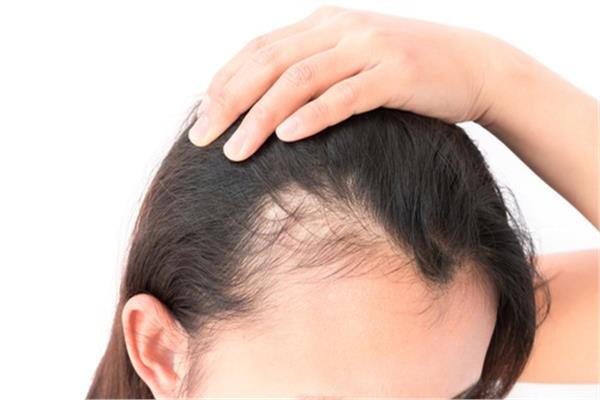أهمية زراعة الشعر والأسباب الحقيقية لسقوطه