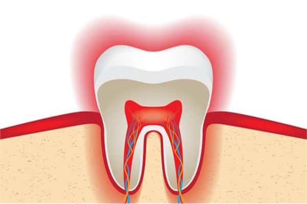 دكتور أسنان: هذه الحالات التى تحتاج الى سحب أو تمويت العصب