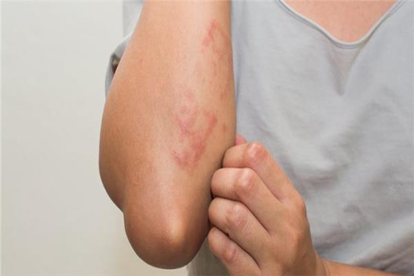6 طرق طبيعية للقضاء على « احمرار الجلد»
