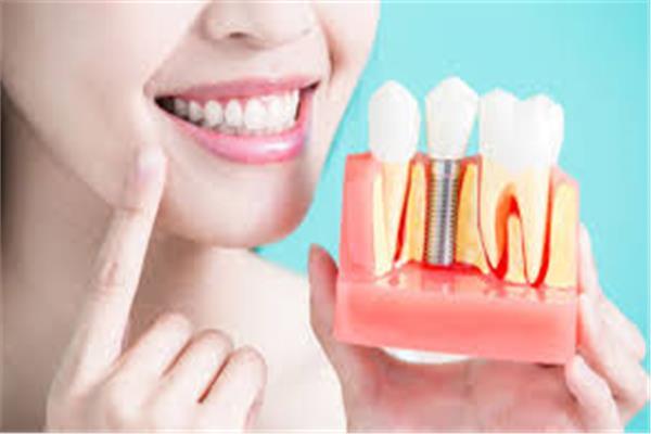 نها عمارة توضح مميزات التركيبات الثابتة للأسنان