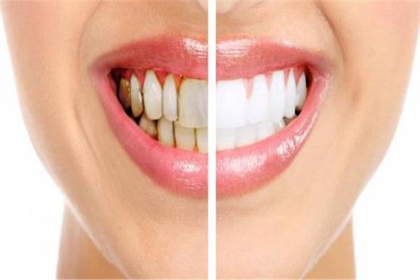 طبقات الجير على الأسنان