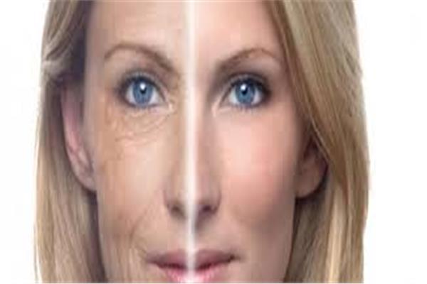 أخصائي تجميل: شد الوجه والرقبة بإستخدام الخيوط من الطرق الأحدث والغير مؤلمة
