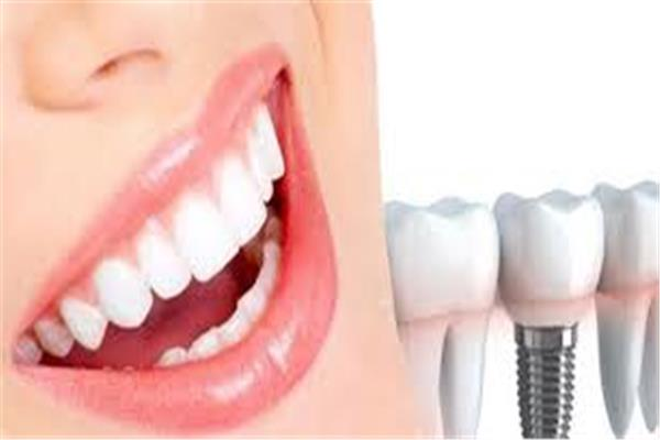 الفروق بين زراعة الأسنان التقليدية وزراعة الأسنان الفورية