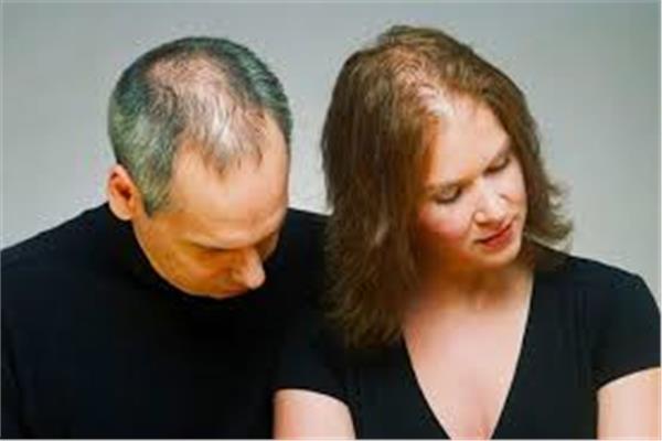 « بدون زراعة شعر».. وصفة طبيعية للتخلص من «الصلع»