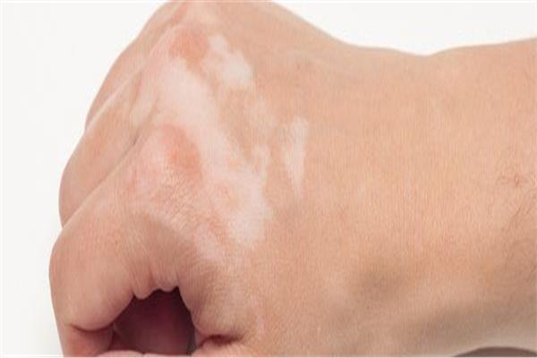 «مش كل البقع بُهاق» .. أمراض تترك علامات بيضاء على الجلد