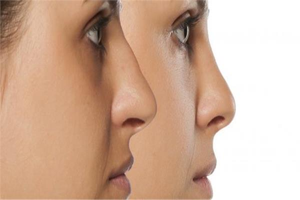 الدكتور أحمد الشريف أستاذ جراحات التجميل والإصلاح بطب عين شمس