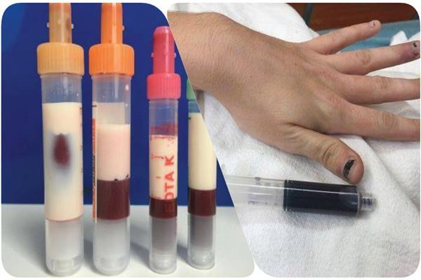 دماء زرقاء لإحدى المريضات وأخرى تشبه للبن أرعبتا طبيبيّن في الولايات المتحدة