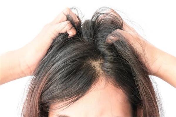 استشاري تجميل يوضح كيفية زراعة الشعر للنساء بدون حلاقة