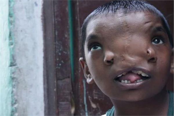 الطفلة الهندية «لاكشمي»