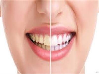 تدخين السجائر والإفراط في معجون الأسنان يسببان تغيير لون الأسنان