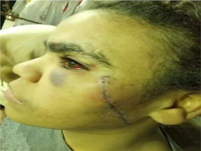 الأمن يكثف جهوده لضبط عاطل أصاب طفلة في الجيزة بعاهة مستديمة
