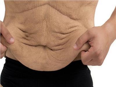 4 نصائح لتجنب ترهلات الجسم