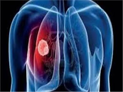 ارتفاع عدد الناجين من المصابين بسرطان الرئة في الولايات المتحدة