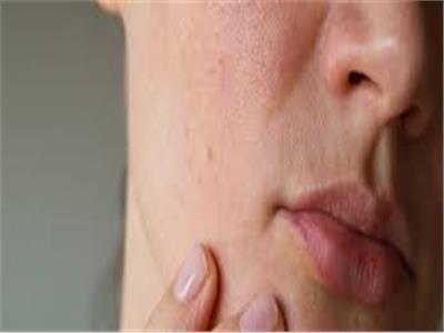 قناع «العسل والموز» لمحاربة جفاف الجلد
