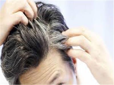طبيبة روسية: الاكتئاب والتوتر سببًا لشيب الشعر مبكرًا لدى الشباب