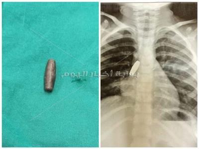 صور  طفلة تبتلع طلقة خرطوش و«ملوي التخصصي» تنجح في إنقاذها