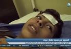 شاهد| الأطفال مصابو مسجد الروضة بالعريش يروون لحظات الألم