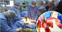 اليوم.. المرافعة في محاكمة 41 متهمًا بـ«تجارة الأعضاء البشرية»