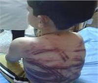 التحقيق مع ربة منزل عذبت أطفال زوجها بالصف