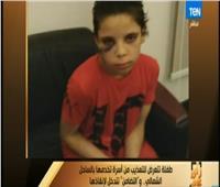 فيديو| تفاصيل تعرض طفلة للتعذيب في الساحل الشمالي