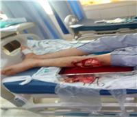 علاج طفل من «بكتيريا آكلة للحوم البشر» فى مستشفى المنصورة