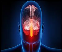 النشاط الحركي يساعد على التعافي من السكتة الدماغية