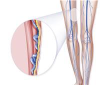 طول أو قصر القامة يؤثر على الإصابة بدوالي الساقين