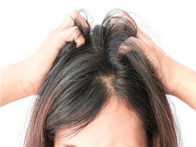 تعرف على أحدث طرق زراعة الشعر بدون ألم