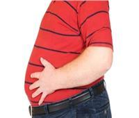 استشاري سمنة: زيادة الوزن أحد مسببات تآكل العمود الفقري