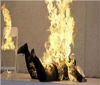 عامل يُشعل النار في جسده احتجاجا على انفصال والديه