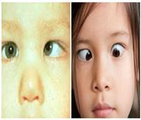 «حَوَل العينين».. كل ما تريد معرفته عن الأسباب والمضاعفات والعلاج