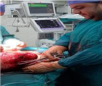 استئصال ورم ضخم لمريضة بمركز أورام طنطا